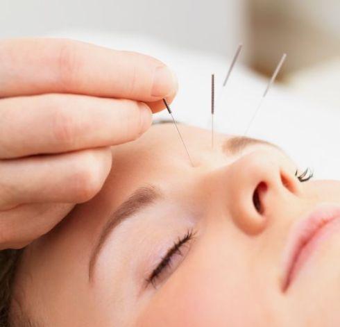 acupuncture 140